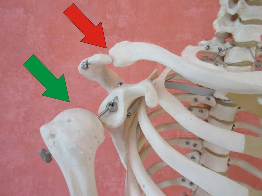 Impingement-Syndrom der Schulter - Osteopathie