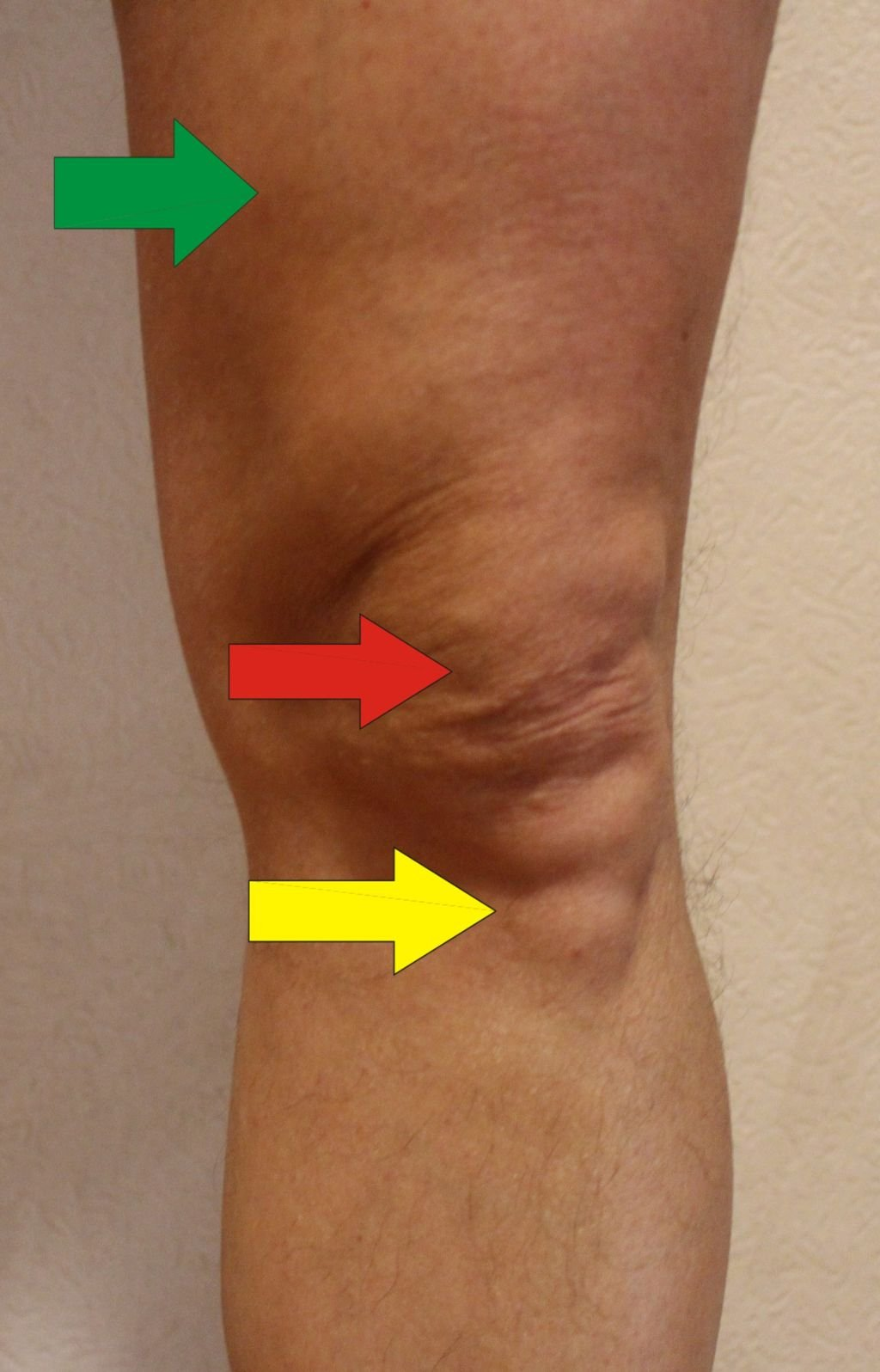 atherosklerose becken bein op
